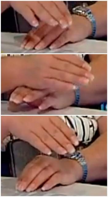 Руки Вассермана