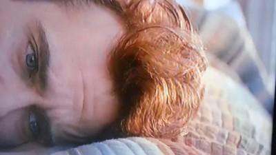 Joaquin Phoenix's Forehead