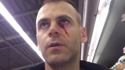 Травма глаза полученная в Maxima XX J. Smuuli tee 9 Tallinn
