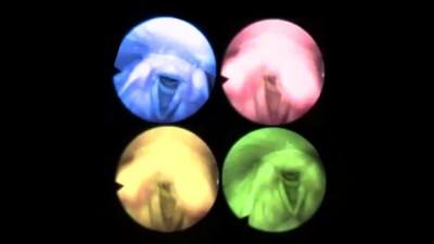 Голосовые связки (Vocal Cords - MTV)