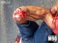 Motorcylce Accident Leaves Leg Mangled