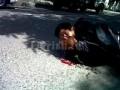 Парень упал с мопеда и ранил себе глаз
