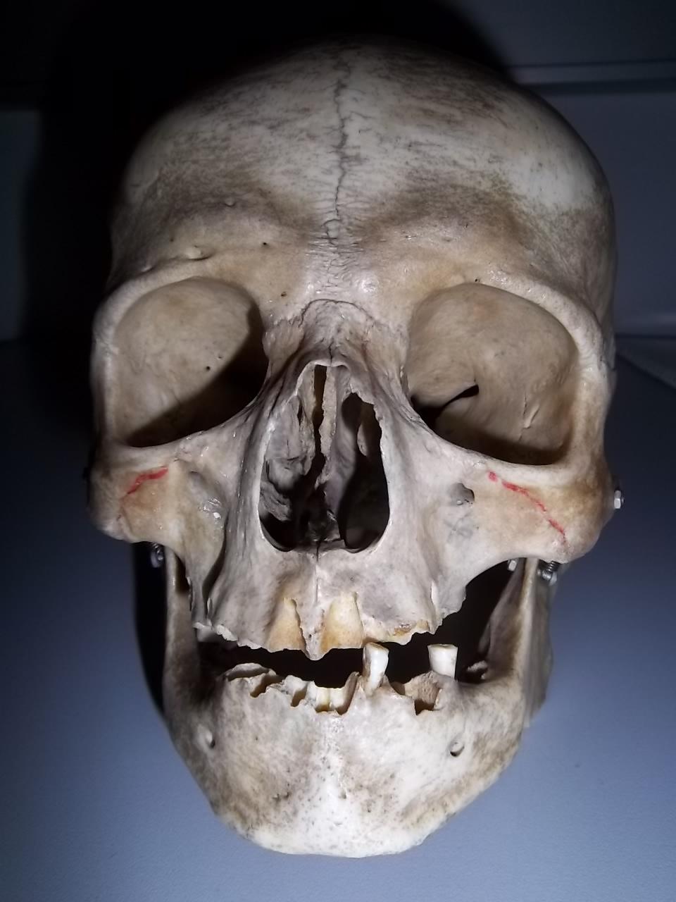 формы норм черепа человека фото фотографа человека