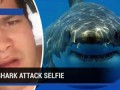 Shark attack victim takes graphic selfie video after attack in Hawaii - TomoNews